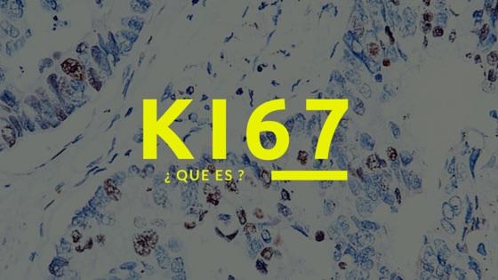 Que es el ki 67